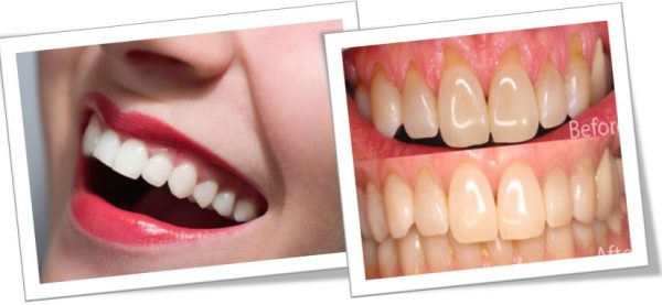 Natural Remedies To Strengthen Teeth And Gums
